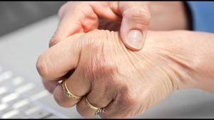 natural remedies for rhumatoid arthritis